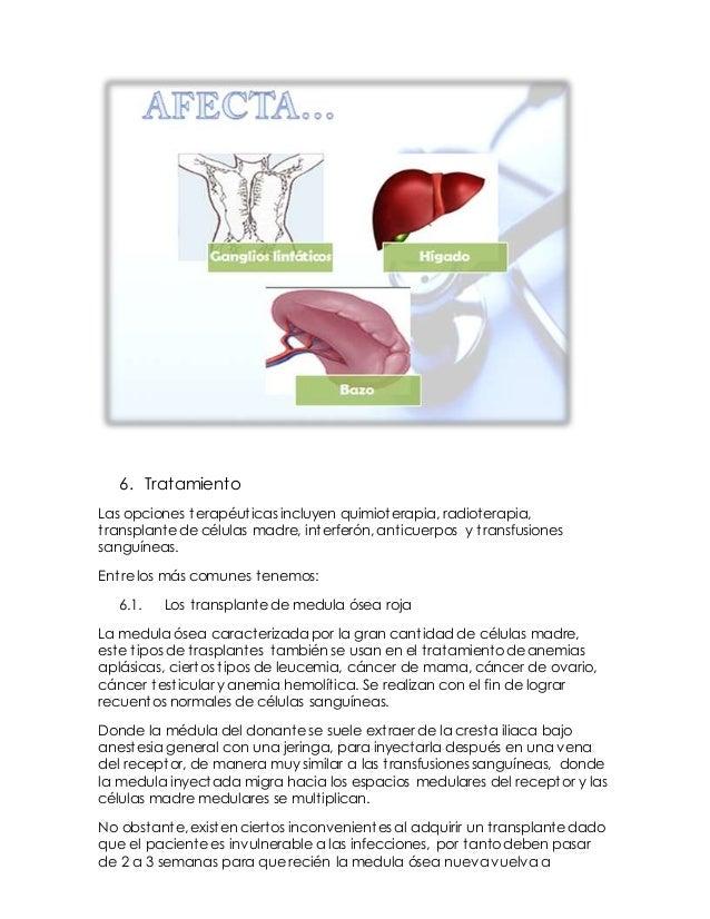7. Conclusión:  La leucemia es grupo de cánceres de la médula ósea roja, en donde los glóbulos blancos anormales se multi...