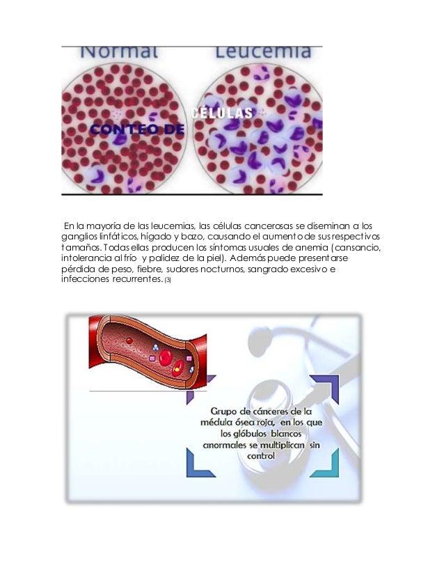 3. Clasificación Los tipos de leucemia pueden agruparse según la rapidez con la que la enfermedad avanza y empeora. La leu...