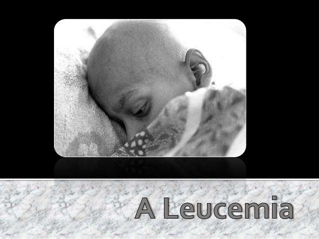 - Grupo 10 – Leucemia –Componentes  Slide 3  -O que é a Leucemia?  Slide 4  -Genetica da Leucemia  Slide 5  - Mutação G...