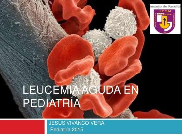 LEUCEMIA AGUDA EN PEDIATRÍA JESUS VIVANCO VERA Pediatría 2015