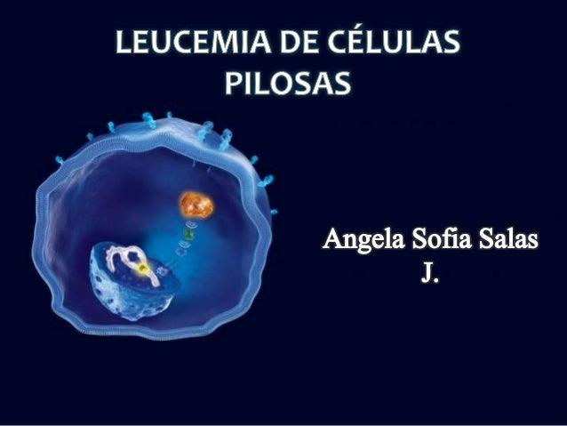 • Enfermedad linfoproliferativa de células B • Caracterizada por: • Es una enfermedad rara (2 % de las leucemias en adulto...