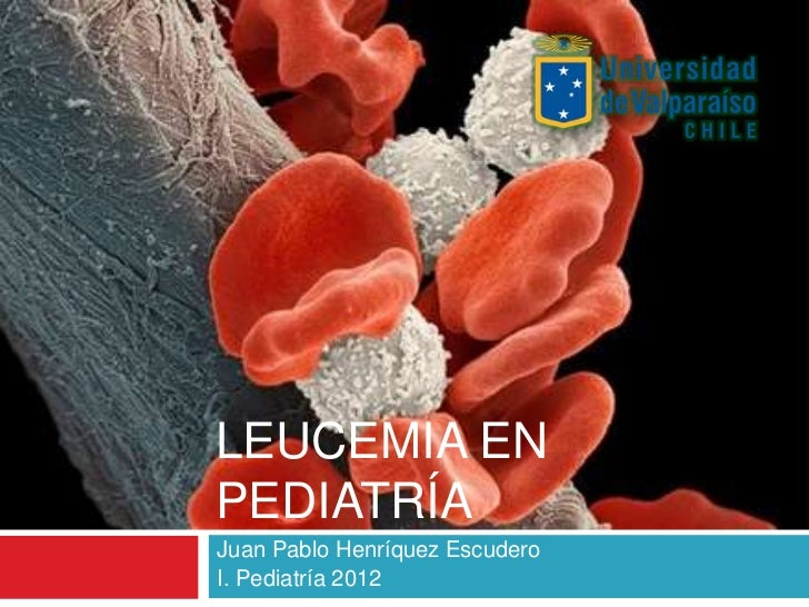 LEUCEMIA ENPEDIATRÍAJuan Pablo Henríquez EscuderoI. Pediatría 2012