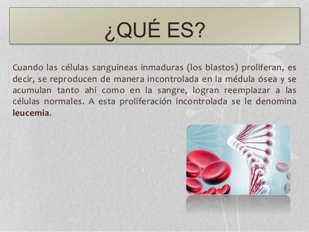 ¿QUÉ ES? Cuando las células sanguíneas inmaduras (los blastos) proliferan, es decir, se reproducen de manera incontrolada ...
