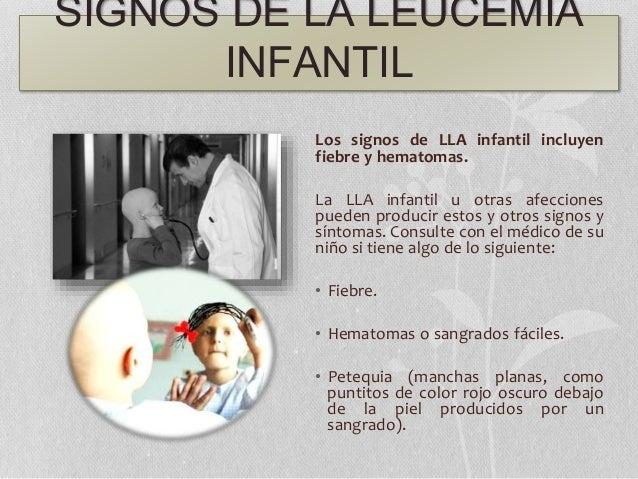 SIGNOS DE LA LEUCEMIA INFANTIL Los signos de LLA infantil incluyen fiebre y hematomas. La LLA infantil u otras afecciones ...
