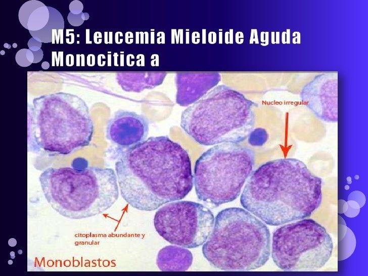 Leucemia promielocitica aguda