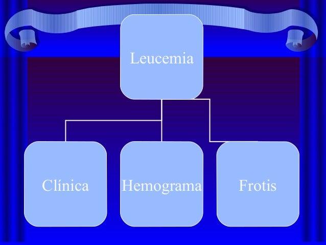 Leucemias 1214015873776626-9 Slide 2