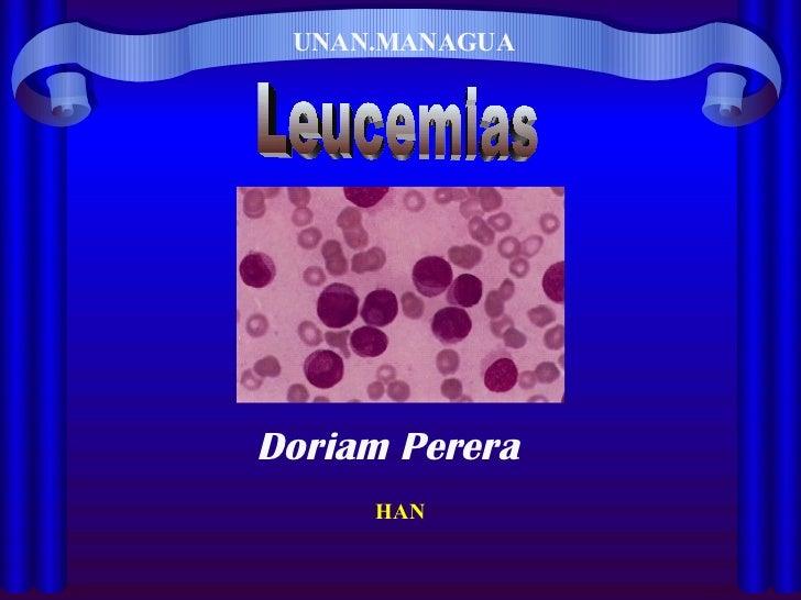 UNAN.MANAGUA Leucemias HAN Doriam Perera