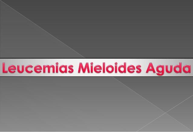 Leucemias agudas Slide 2
