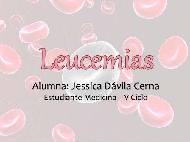 Alumna: Jessica Dávila Cerna Estudiante Medicina – V Ciclo