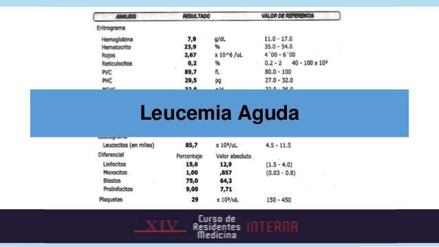 Leucemia Aguda• Linfoide y mieloide con clínica similar.• Síntomas generales, infiltración de  órganos, insuficiencia medu...