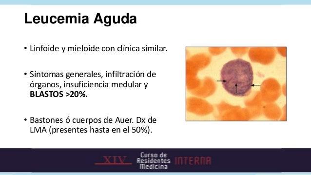 Inmunofenotipo de las leucemias.        Marcador    LMA   LMA M3   LLA-B   LLA-T   LLA L3       Peroxidasa    +      +    ...