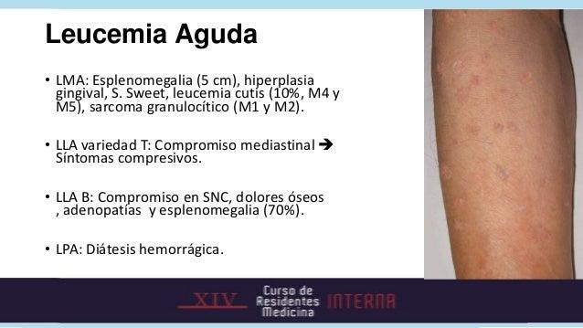 Leucemia Aguda• Tratamiento: Quimioterapéuticos. TMO.  • Fase de inducción: Células leucémicas indectables por morfología ...