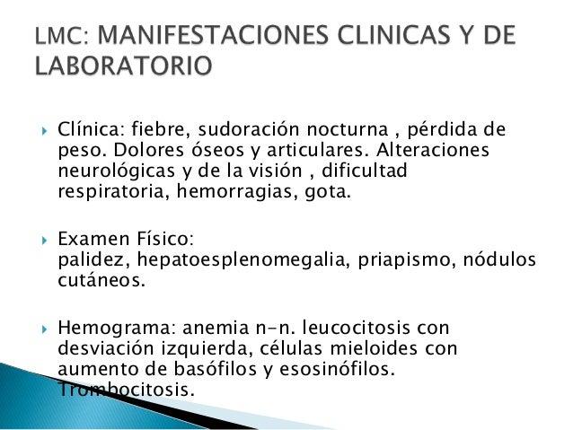 Leucemias pediatria