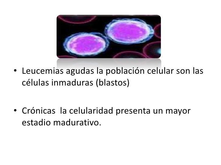 Leucemias pediatria 2011 Slide 3