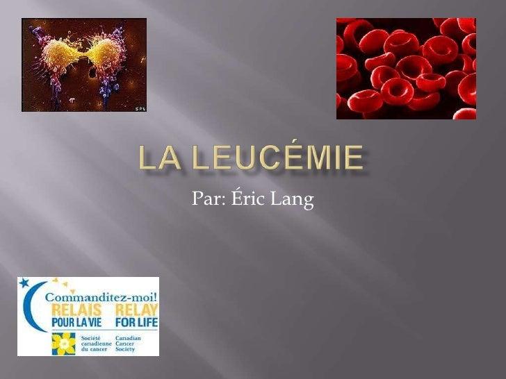 La leucémie<br />Par: Éric Lang<br />