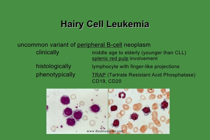 leukemia definition cause and effects Leukemia and lymphoma are both types of blood cancer that affect the white blood cells there are some similarities between the two conditions, but the origins, causes, diagnosis, and treatments.