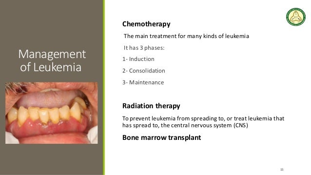 Dental Management of Patient with Leukemia