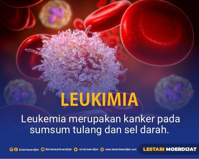 Rerielestarimoerdijatlestarimoerdijat rerieLmoerdijat www.lestarimoerdijat.com LESTARI MOERDIJAT Leukemia merupakan kanker...