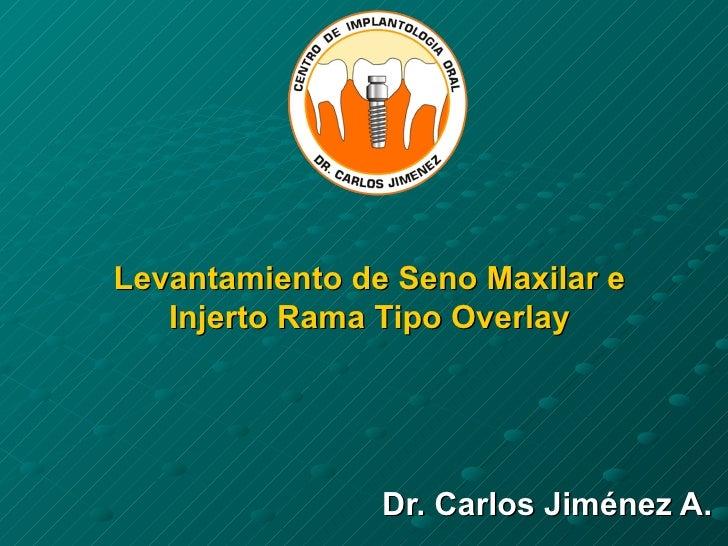 Levantamiento de Seno Maxilar e Injerto Rama Tipo Overlay Dr. Carlos Jiménez A.