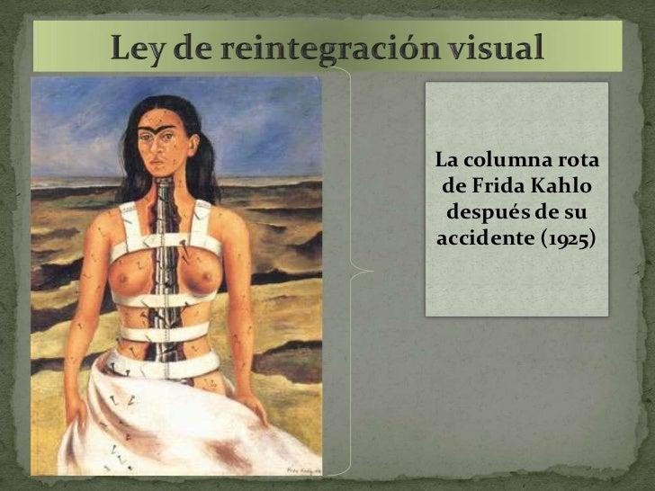 La columna rota de Frida Kahlo después de suaccidente (1925)