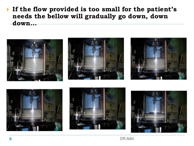  If the flow provided is too small for the patient's needs the bellow will gradually go down, down down... DR.Aditi