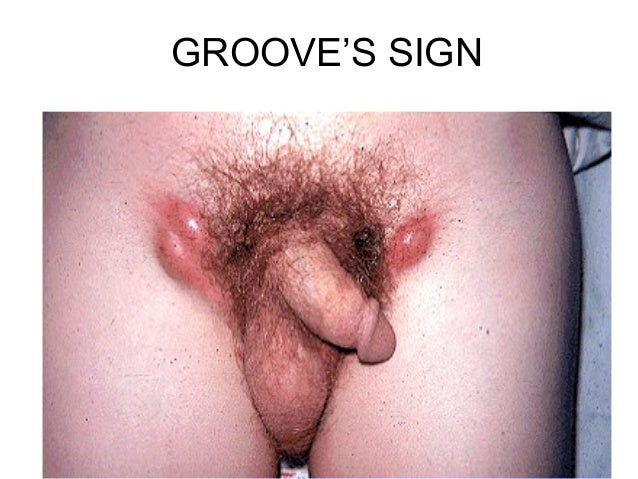 GROOVE'S SIGN