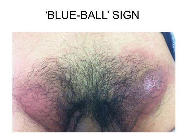 'BLUE-BALL' SIGN