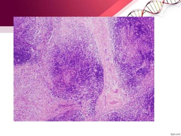 CON DEPLECIÓN LINFOCÍTICA MORFOLOGÍA Y FENOTIPO CARÁCTERÍSTICAS CLÍNICAS Escasez de linfociticos y ceulas RS o variantes p...