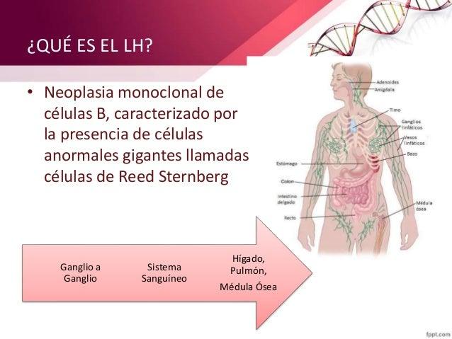 ¿QUÉ ES EL LH? • Neoplasia monoclonal de células B, caracterizado por la presencia de células anormales gigantes llamada...