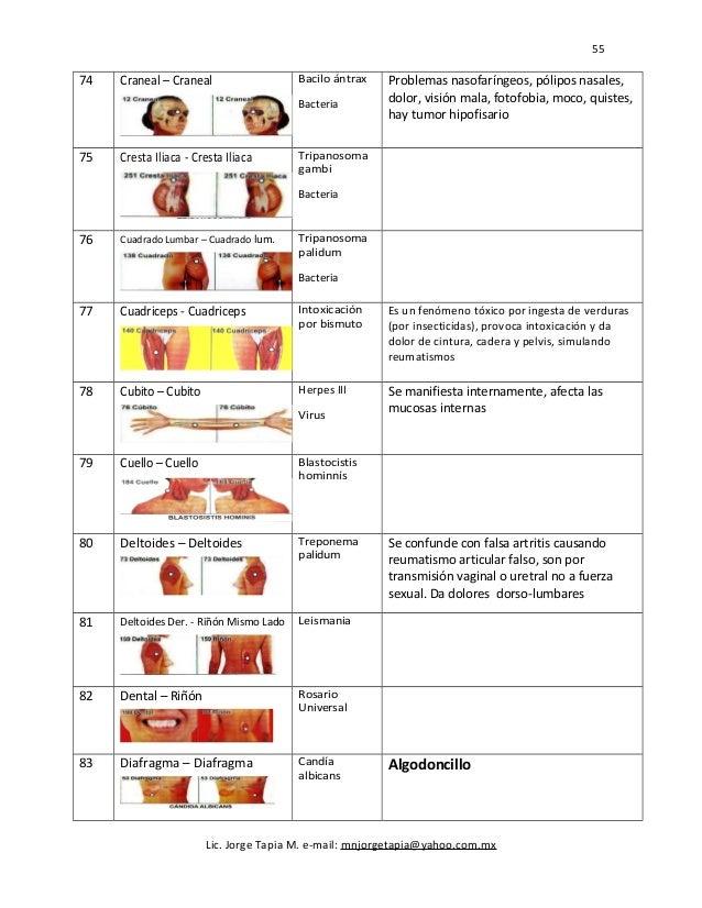 55 74 Craneal – Craneal Bacilo ántrax Bacteria Problemas nasofaríngeos, pólipos nasales, dolor, visión mala, fotofobia, mo...
