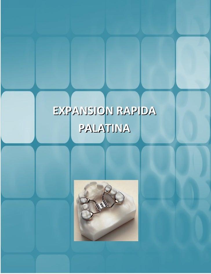 EXPANSION RAPIDA    PALATINA