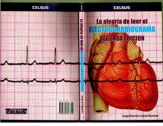 Libro de electrocardiograma.