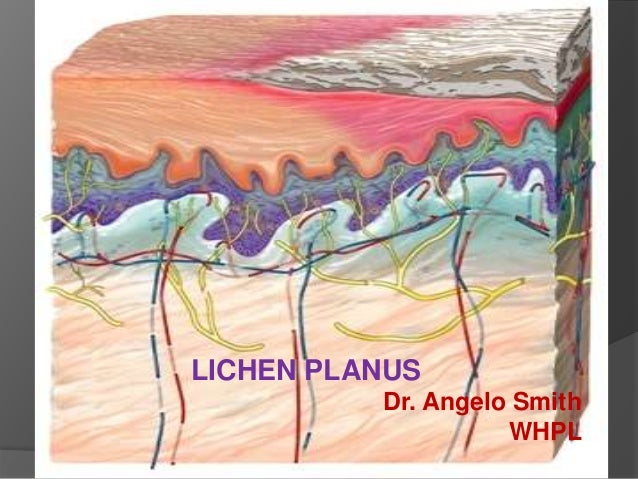 LICHEN PLANUS Dr. Angelo Smith WHPL