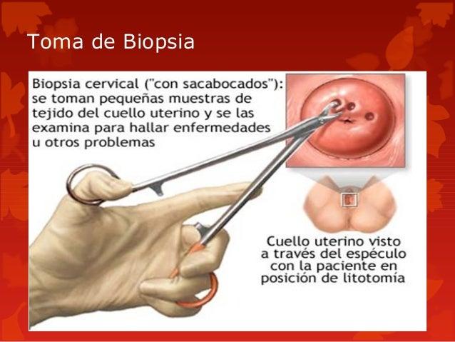 Biopsia En La Matriz Wwwimagenesmycom