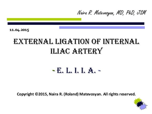 External Ligation of Internal Iliac Artery (E.L.I.I.A) - by Naira R. …