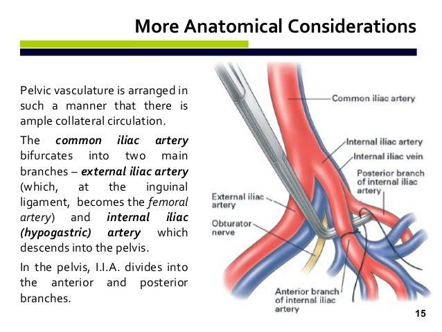 external ligation of internal iliac artery (e.l.i.i.a) - by naira r. …, Human Body