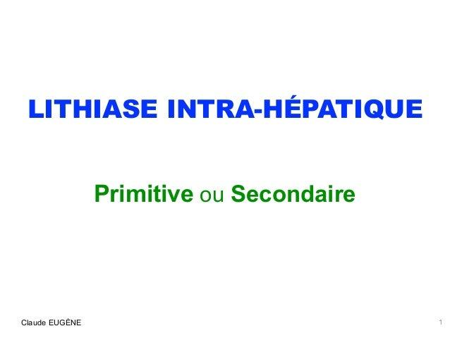 LITHIASE INTRA-HÉPATIQUE Primitive ou Secondaire 1Claude EUGÈNE