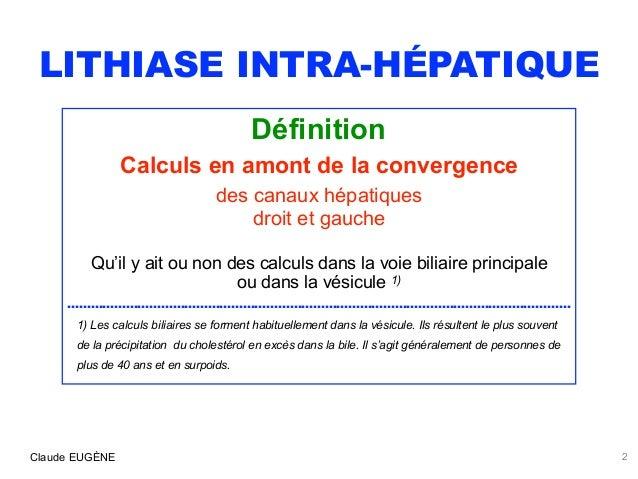 LITHIASE INTRA-HEPATIQUE : PRIMITIVE (Syndrome LPAC) ou SECONDAIRE Slide 2