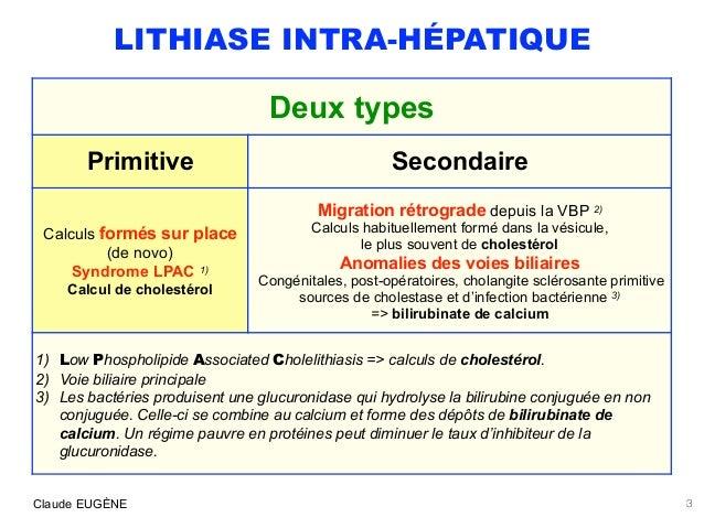LITHIASE INTRA-HEPATIQUE : PRIMITIVE (Syndrome LPAC) ou SECONDAIRE Slide 3