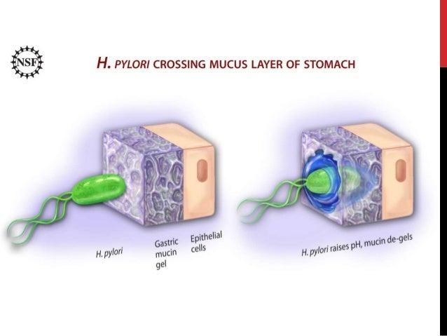 Liječenje infekcije helicobacter pylori i mukoprotektivi Slide 3