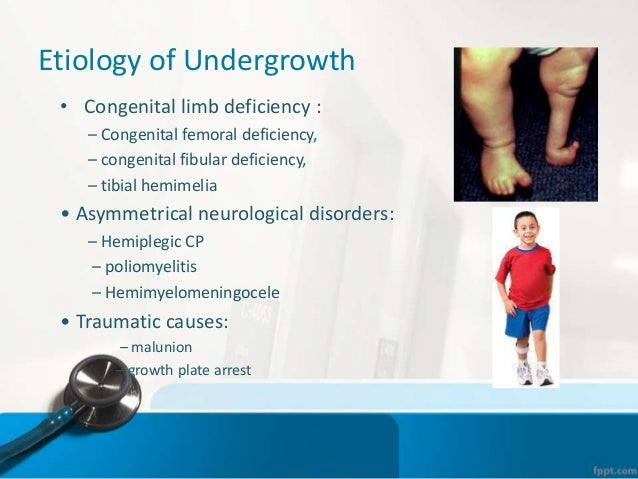 Knee and ankle mazyad alotaibi. Ppt video online download.