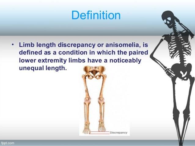 Congenital limb length discrepancy ppt video online download.