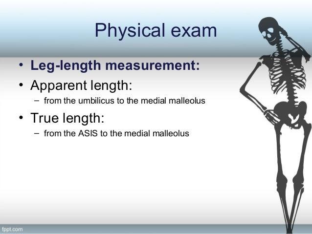 Limb length discrepancy evaluation.