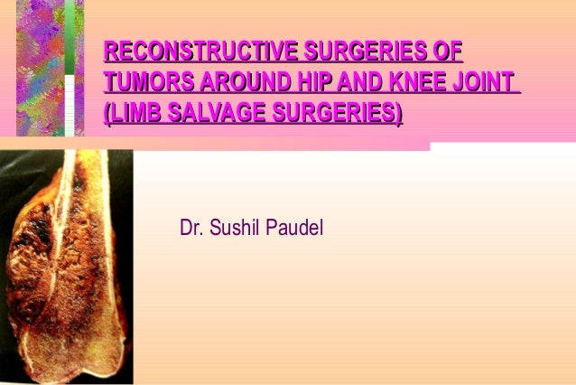 RECONSTRUCTIVE SURGERIES OFRECONSTRUCTIVE SURGERIES OF TUMORS AROUND HIP AND KNEE JOINTTUMORS AROUND HIP AND KNEE JOINT (L...