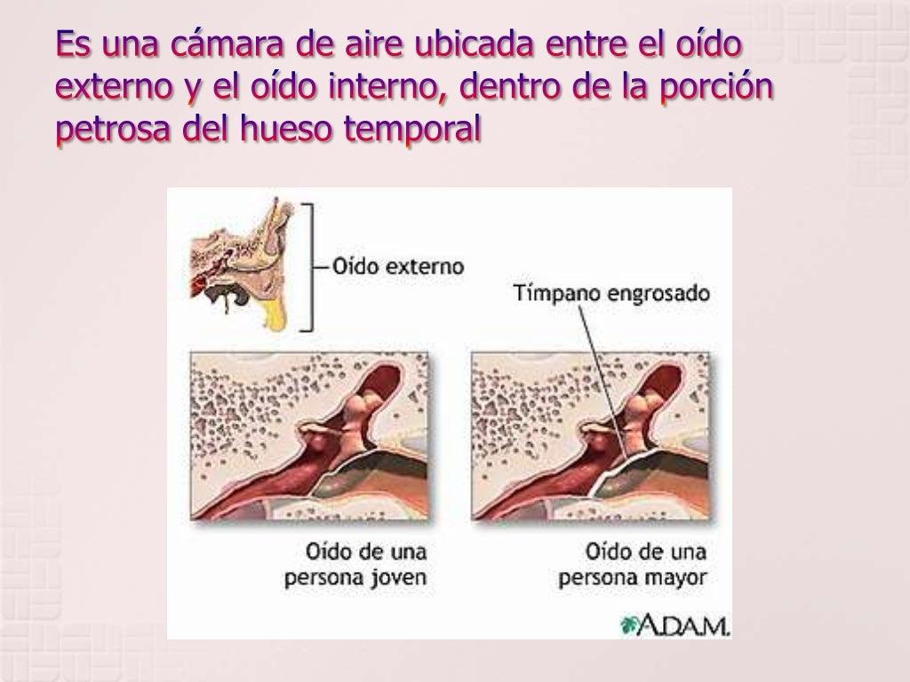 Increíble Oído Medio Anatomía Ct Imágenes - Imágenes de Anatomía ...