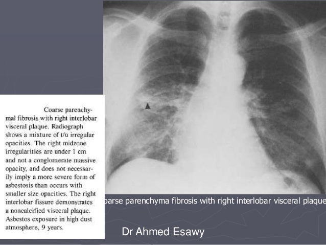 linear lung density x ray dr ahmed esawy