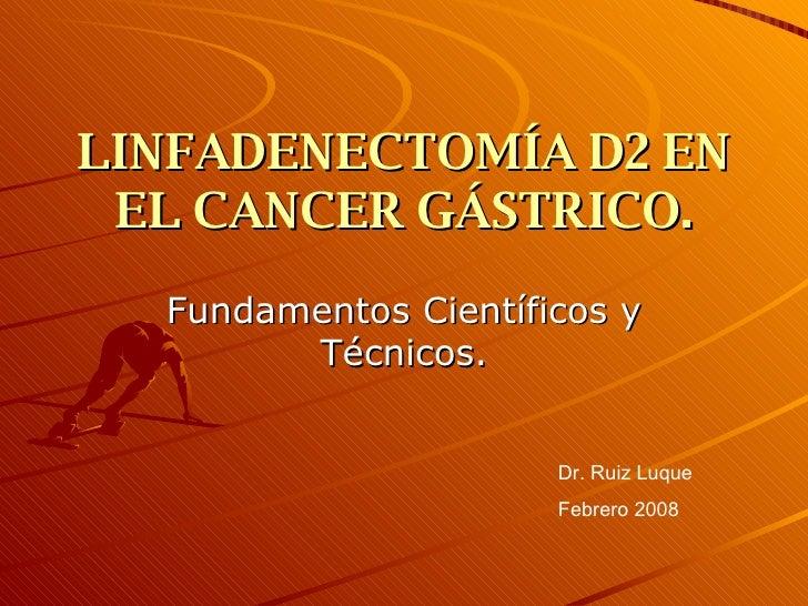 LINFADENECTOMÍA D2 EN EL CANCER GÁSTRICO. Fundamentos Científicos y Técnicos. Dr. Ruiz Luque Febrero 2008