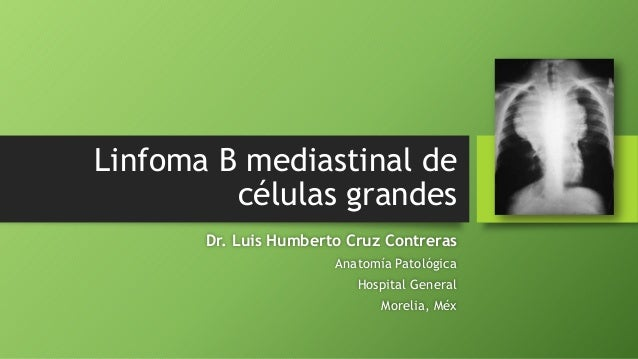 Linfoma B mediastinal de células grandes Dr. Luis Humberto Cruz Contreras Anatomía Patológica Hospital General Morelia, Méx