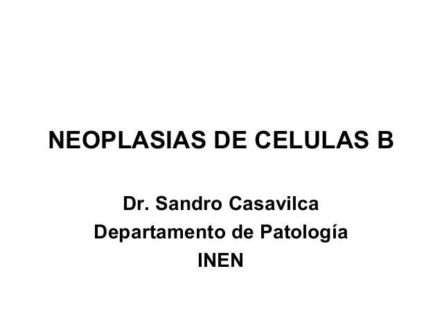 NEOPLASIAS DE CELULAS B Dr. Sandro Casavilca Departamento de Patología INEN