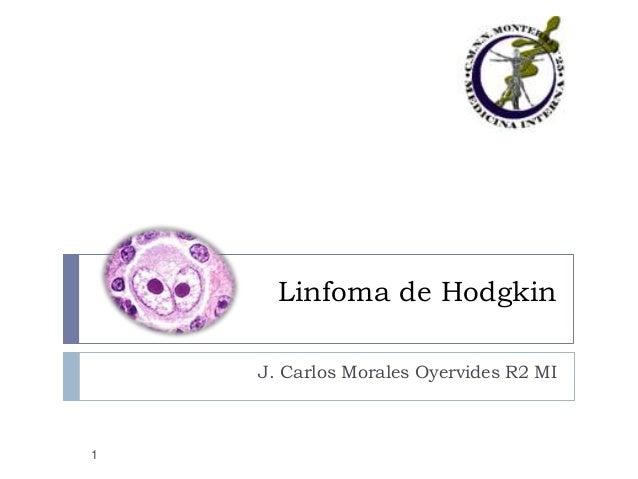 Linfoma de Hodgkin J. Carlos Morales Oyervides R2 MI  1